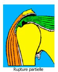 Les ruptures de la coiffe des rotateurs