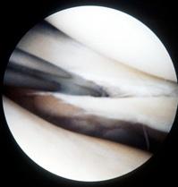 Les lésions des ménisques du genou