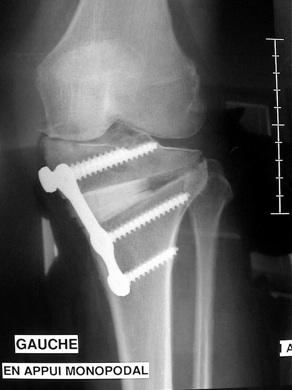 L'ostéotomie tibiale de valgisation