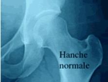 Prothèse totale de la hanche