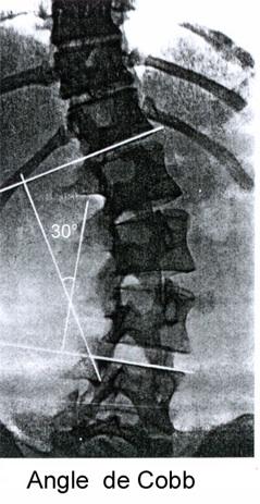 angle de Cobb scoliose